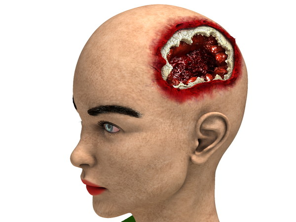 obj bust girl severe head - Girl with severe Head Injury... by scyrus