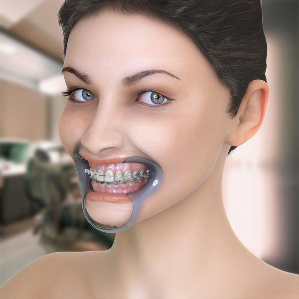 Orthodontic Mannequin 3D Models