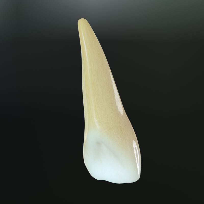 Upper Lateral Incisor
