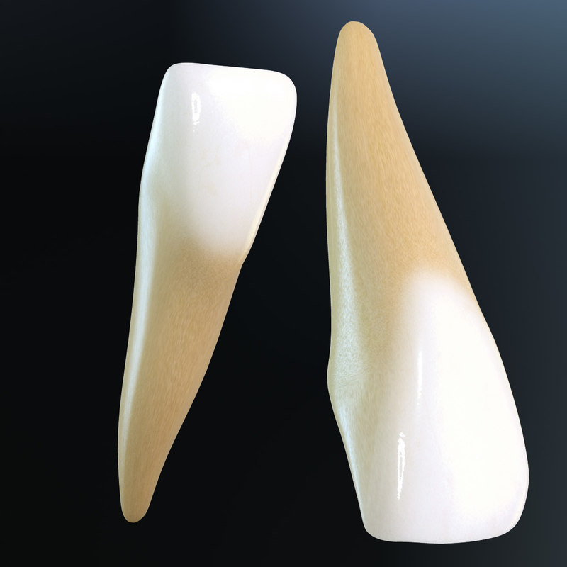 Central Incisors