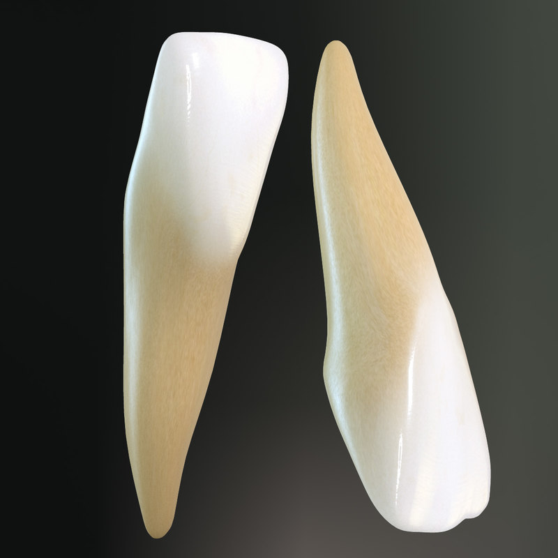 Lateral Incisors