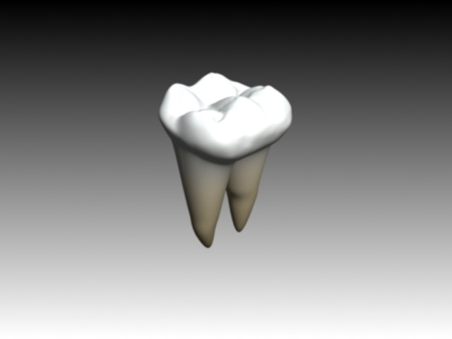 first molar mandibular textured2.jpg