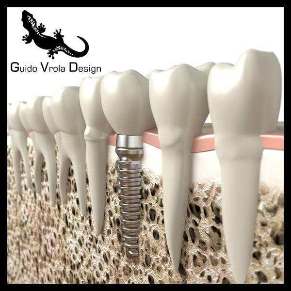 Impianto_Dentale_2_1_Lg.jpg