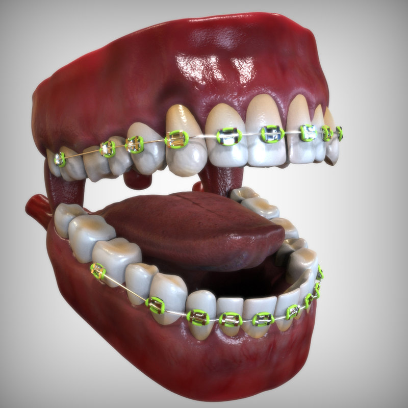 Mouth with Dental Braces