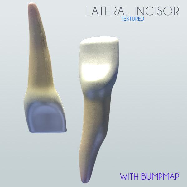 Human Lateral Incisor