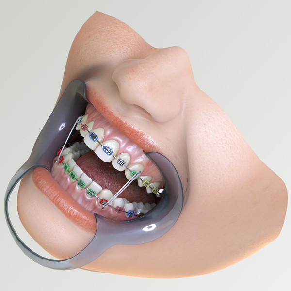 Orthodontic Mouth 3D Models