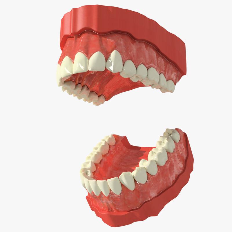 Teeth_02i.jpg