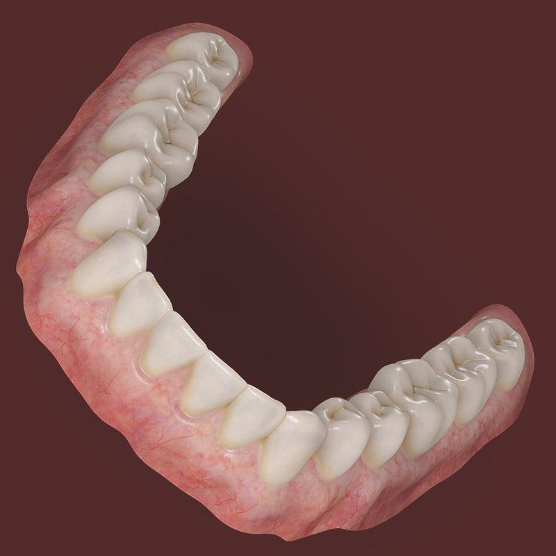Dentures Lower