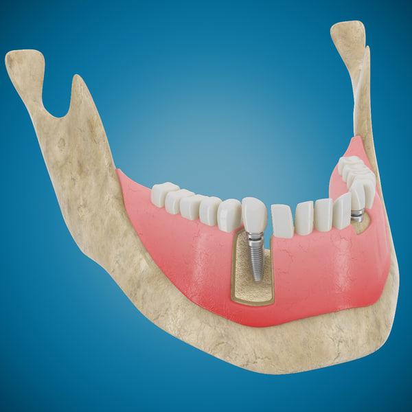 Dental Implant 3D Models